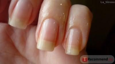 Для чего мажут ногти аевитом