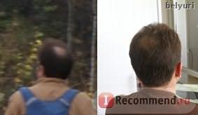 Спрей для волос Alerana для наружного применения 5% фото