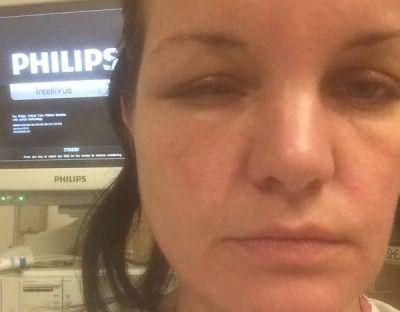 аллергия на хну для бровей лечение