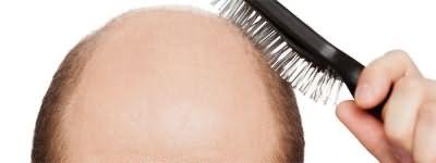 Диффузная алопеция – равномерное выпадение волос