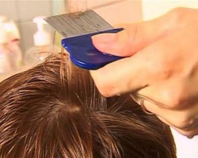 чемеричная вода для волос отзывы