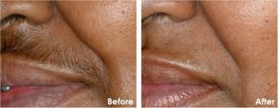 Шугаринг фото до и после эпиляции над верхней губой