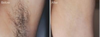 Шугаринг фото до и после эпиляции подмышек