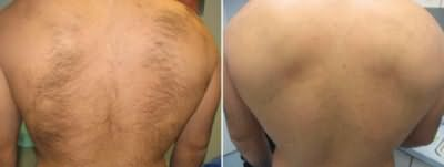 Шугаринг фото до и после эпиляции спины