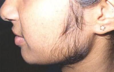 повышена волосатость у девушки