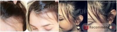Это фото до и после, думаю видно насколько за пару месяцев отрасли волосы)))