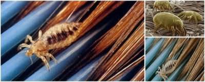Гниды крепко цепляются к волосам