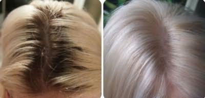 Результат осветления волос перекисью