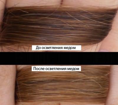 До и после применения меда