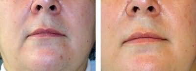 Результат удаления волос над губой в домашних условиях