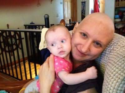процес восстановления волос после химиотерапии