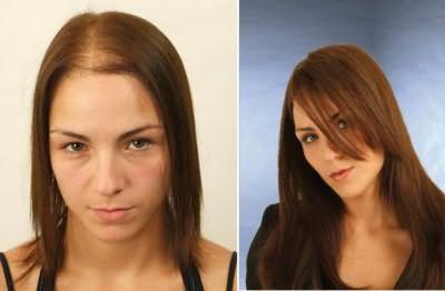 какой шампунь для роста волос самый лучший