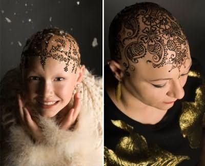 В то время как растут волосы после химиотерапии, многие женщины выбирают весьма неординарный способ скрыть отсутствие локонов – временные татуировки