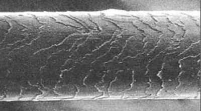 Увеличенное изображение волоса