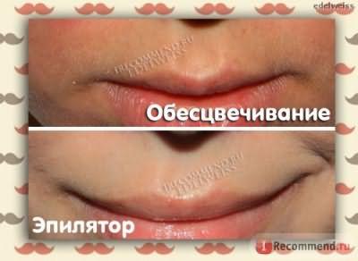 удаление волос над верхней губой фото