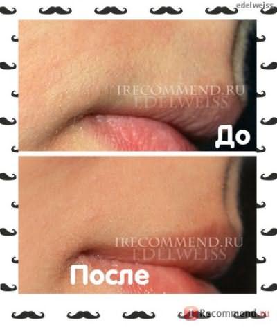 удаление волос над верхней губой фото до и после
