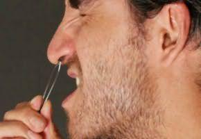 Болезненная процедура с применением пинцета