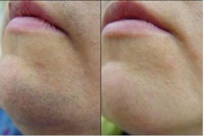 Фото до и после эпиляции. Удалены не только стержни, но и луковицы