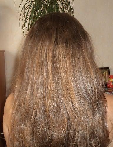 На фото результат применения кефирной маски в течение месяца