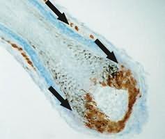 лечебный шампунь против выпадения волос