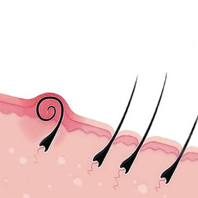 Врастание волоска после бритья