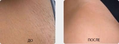 На фото – зона бикини до и после обработки лазером