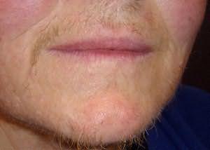 Кроме оволосения груди переизбыток тестостерона может приводить и к таким последствиям, как на этом фото