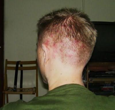 прыщи на волосистой части головы