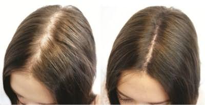 Использование шампуня Селенцин: до и после