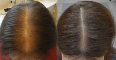 Результат применения таблеток Селенцин: фото до и после
