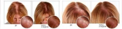 масло для волос ultra hair system отзывы