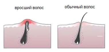 На картинке показана разница между обычным и вросшим волоском