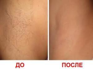 Фото подмышек до и после восковой эпиляции