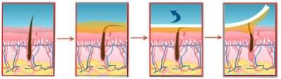 Здесь хорошо показан принцип биоэпиляции: волосок выдергивается полностью, с корнем, что и гарантирует долговременный эффект. В случае же с бритвой и депиляционными кремами этого не происходит.