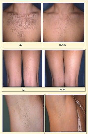 Необходимо заметить, что пероксид осветляет лишь внешнюю часть стержней волос, и поэтому пользоваться им придется регулярно, как только они отрастут