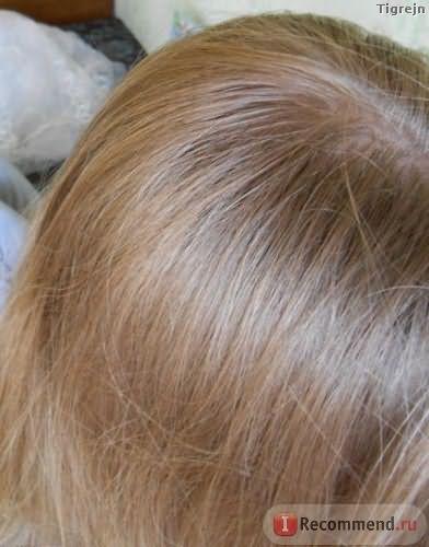 Мои волосенки у корней (не знаю, как сфотать, чтобы были видные новые волосы)