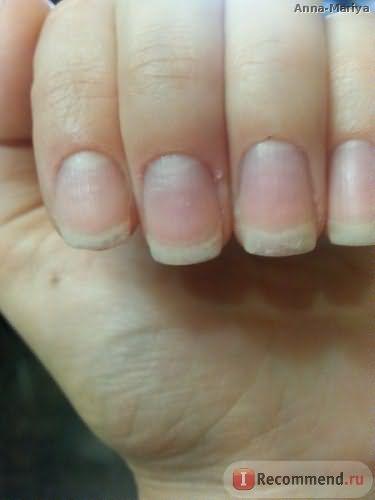 Ногти после 3 недель приема Эвисент