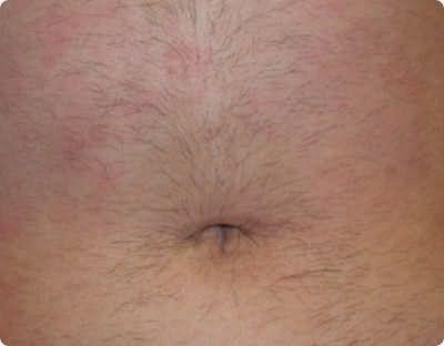 Лишняя растительность, которая появилась на животе из-за такого заболевания, как гирсутизм.