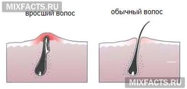 эпиляция и врастание волос