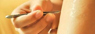 Удаляем вросший волосок на ноге пинцетом
