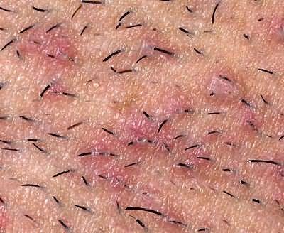 Врастание волосинок – крайне неэстетичная проблема