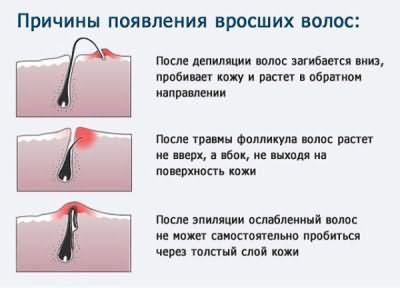Причины врастания волосинок после эпиляции